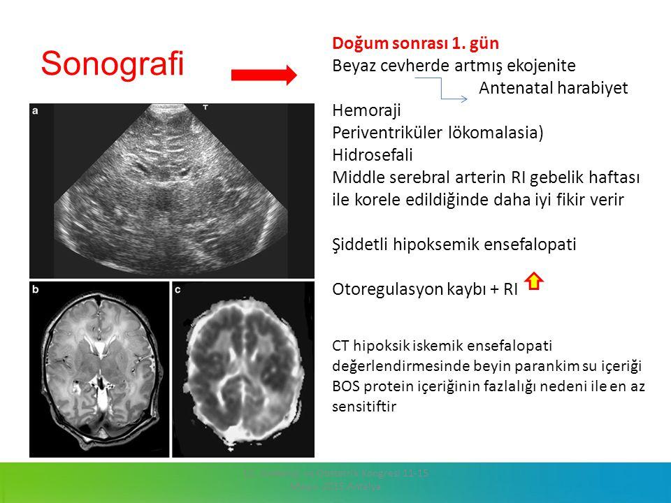 Sonografi 13. Jinekoloji ve Obstetrik Kongresi 11-15 Mayıs 2015 Antalya Doğum sonrası 1. gün Beyaz cevherde artmış ekojenite Antenatal harabiyet Hemor
