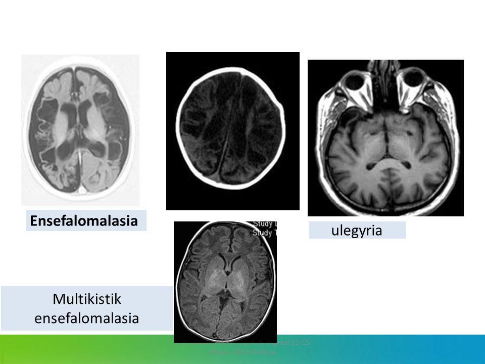 13. Jinekoloji ve Obstetrik Kongresi 11-15 Mayıs 2015 Antalya ulegyria Multikistik ensefalomalasia Ensefalomalasia