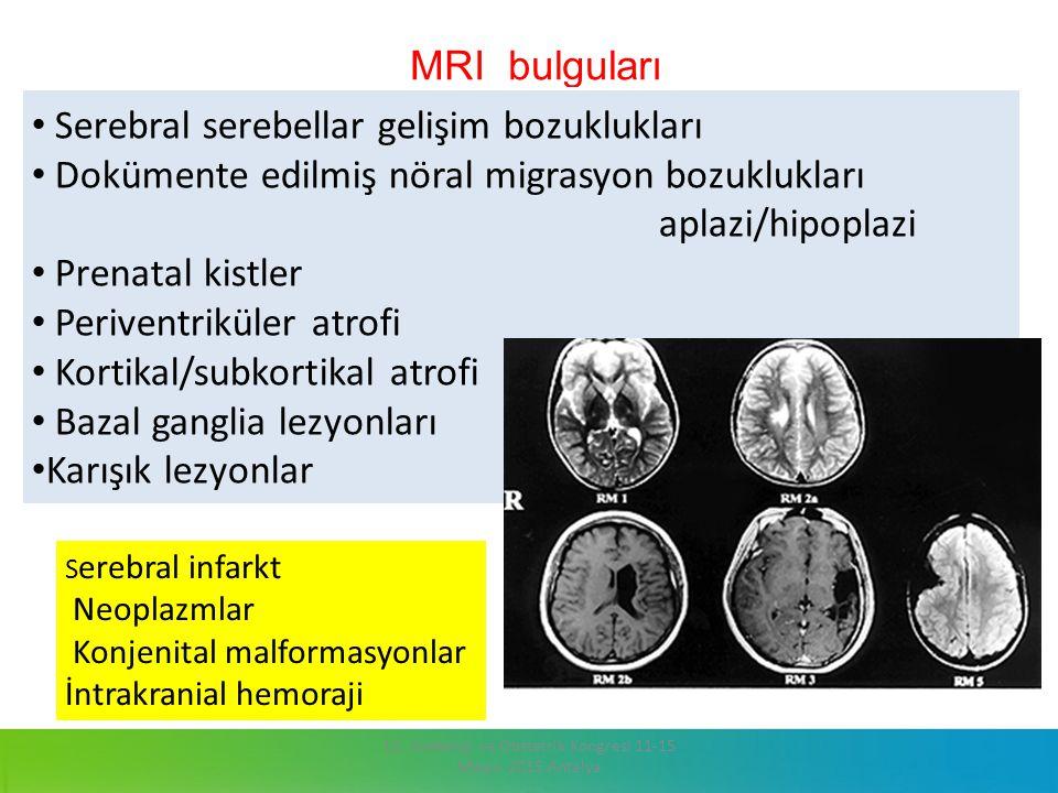MRI bulguları 13. Jinekoloji ve Obstetrik Kongresi 11-15 Mayıs 2015 Antalya. Serebral serebellar gelişim bozuklukları Dokümente edilmiş nöral migrasyo