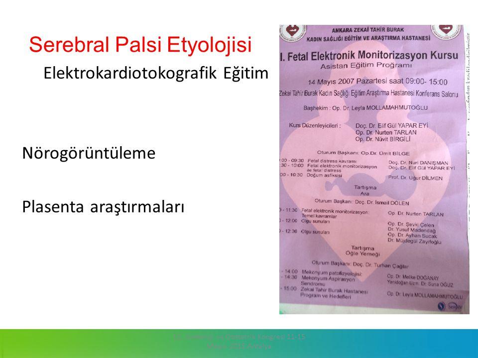 Serebral Palsi Etyolojisi Elektrokardiotokografik Eğitim Nörogörüntüleme Plasenta araştırmaları 13. Jinekoloji ve Obstetrik Kongresi 11-15 Mayıs 2015