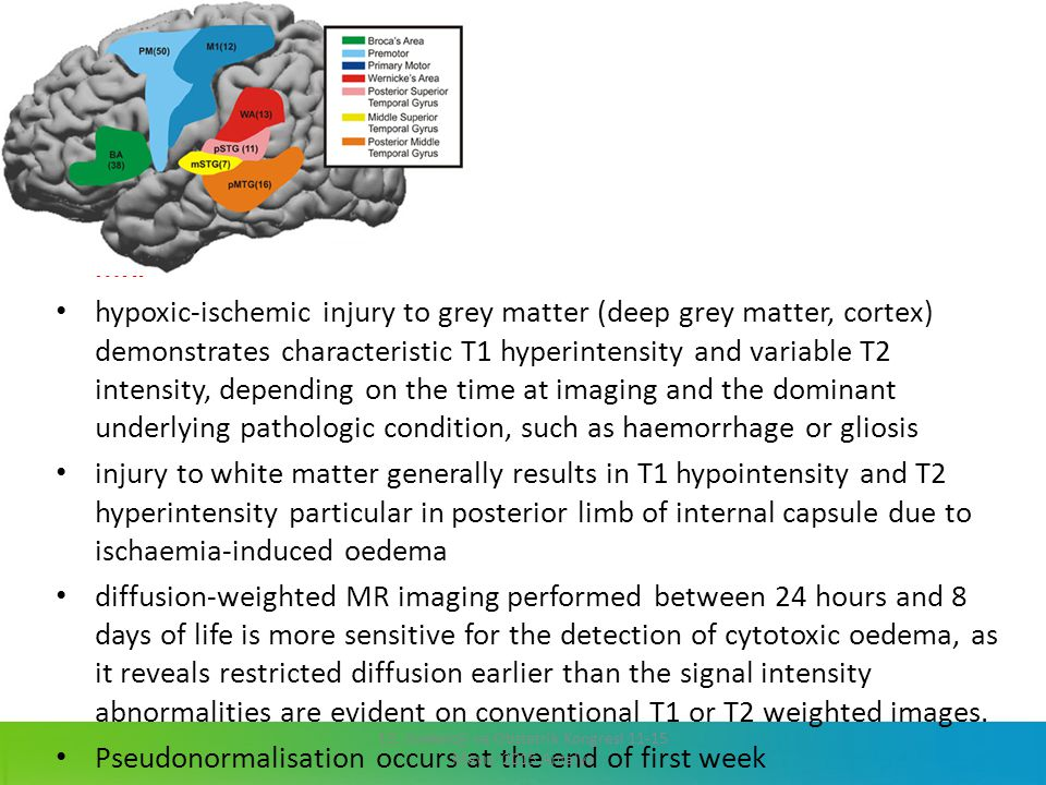 MRI hypoxic-ischemic injury to grey matter (deep grey matter, cortex) demonstrates characteristic T1 hyperintensity and variable T2 intensity, dependi