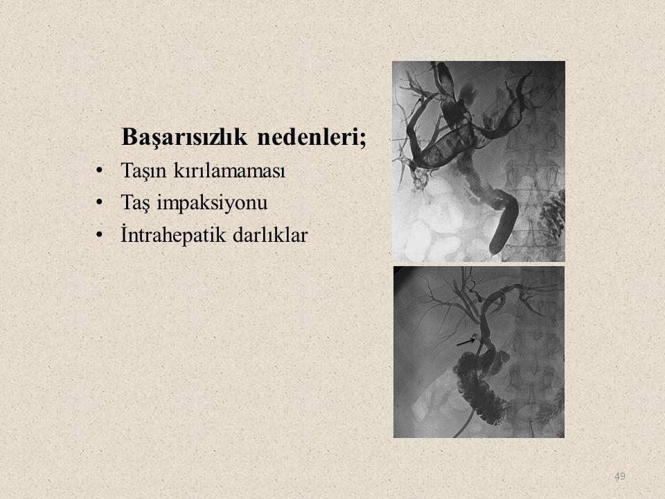 50 1.Ilgit ET, Gürel K, Onal B. Percutaneous management of bile duct stones.