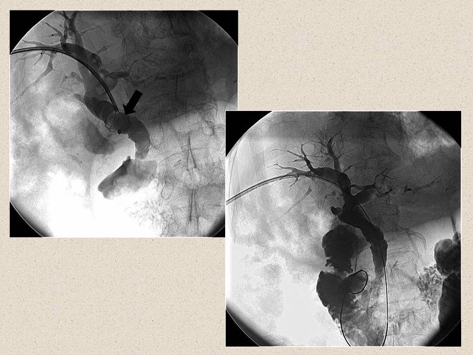 53 Komplikasyonlar Minör komplikasyonlar; Geçici kanama: 15 hasta (%5.7) Majör komplikasyonlar: 18 hasta (%6.8) – Kolanjit (n:7) – Subkapsüler bilioma (n:4) – Subkapsüler hematom (n:1) – Subkapsüler apse (n:1) – Safra peritoniti (n:1) – Duodenal perforasyon (n:1) – Koledok perforasyonu (n:1) – Gastroduodenal arter psödoanevrizması (n:1) – Sağ hepatik arter transeksiyonu (n:1) Ozcan N, Kahriman G, Mavili E.