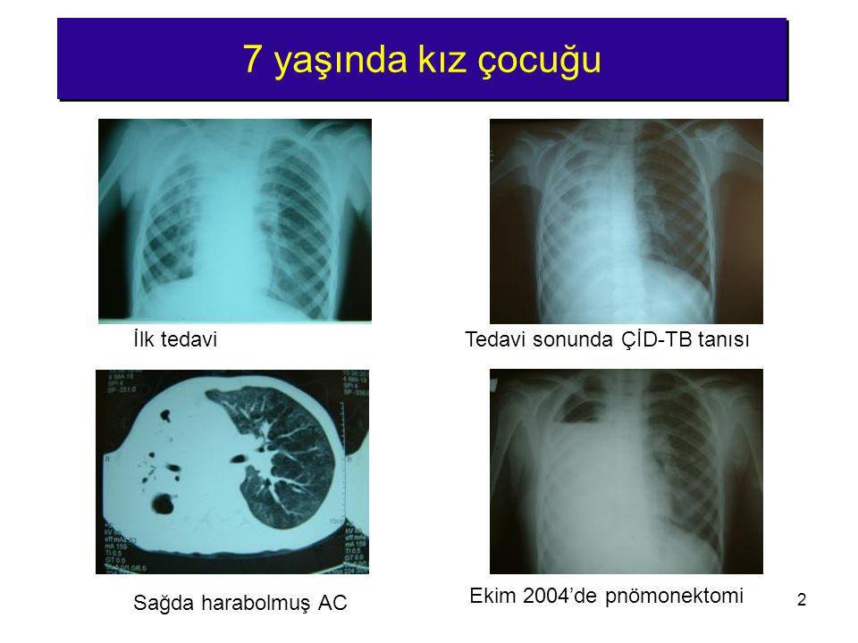 2 7 yaşında kız çocuğu Ekim 2004'de pnömonektomi Sağda harabolmuş AC İlk tedaviTedavi sonunda ÇİD-TB tanısı
