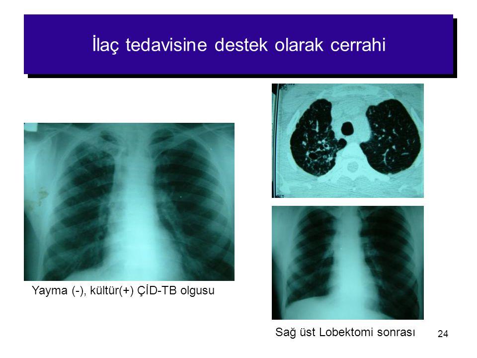 24 İlaç tedavisine destek olarak cerrahi Sağ üst Lobektomi sonrası Yayma (-), kültür(+) ÇİD-TB olgusu