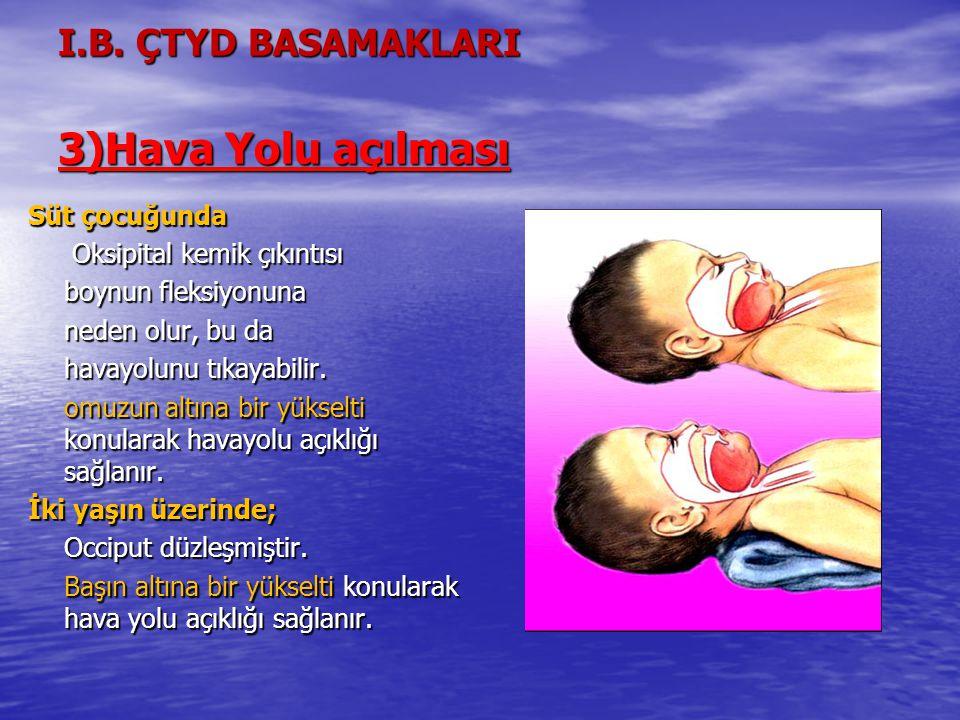 I.B. ÇTYD BASAMAKLARI 3)Hava Yolu açılması Süt çocuğunda Oksipital kemik çıkıntısı Oksipital kemik çıkıntısı boynun fleksiyonuna neden olur, bu da hav