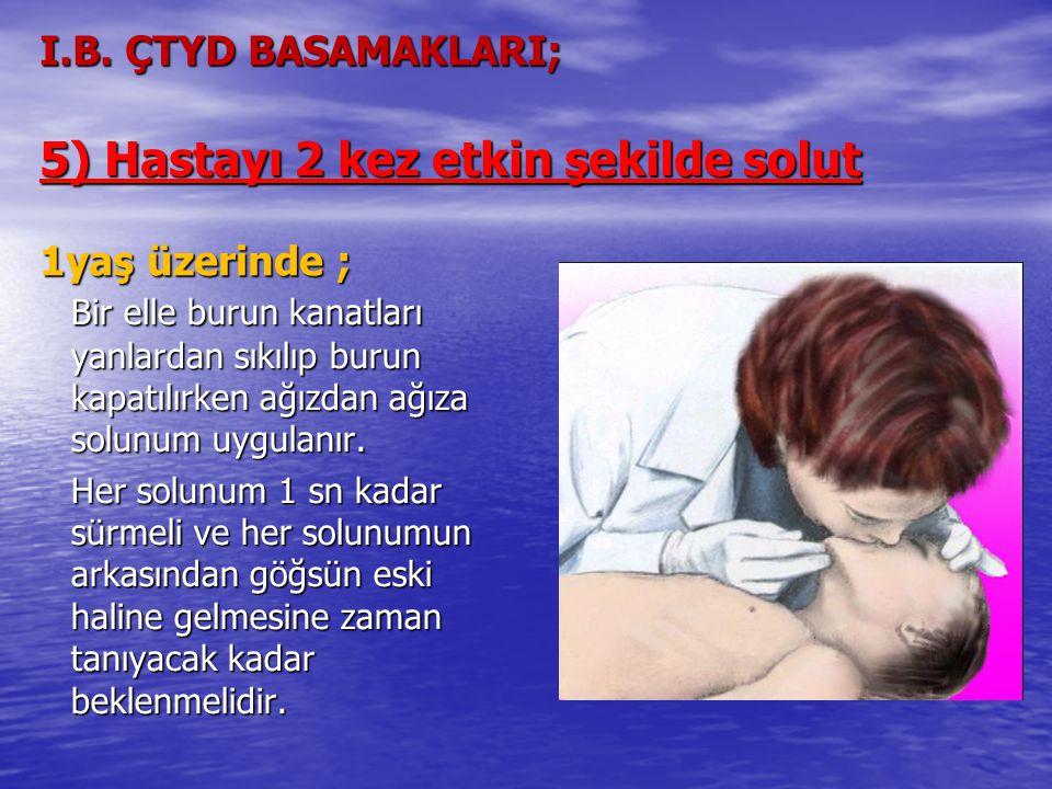 I.B. ÇTYD BASAMAKLARI; 5) Hastayı 2 kez etkin şekilde solut 1yaş üzerinde ; Bir elle burun kanatları yanlardan sıkılıp burun kapatılırken ağızdan ağız
