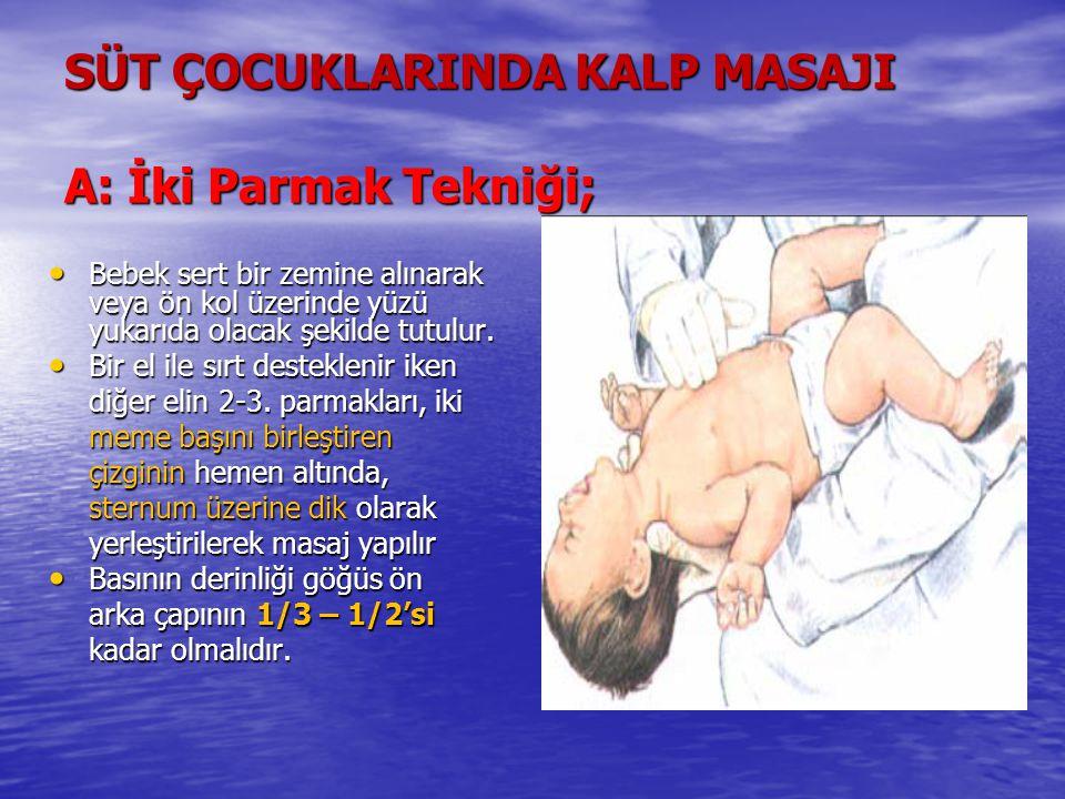 SÜT ÇOCUKLARINDA KALP MASAJI A: İki Parmak Tekniği; Bebek sert bir zemine alınarak veya ön kol üzerinde yüzü yukarıda olacak şekilde tutulur. Bebek se