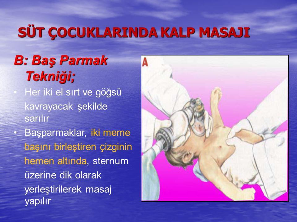 SÜT ÇOCUKLARINDA KALP MASAJI B: Baş Parmak Tekniği; Her iki el sırt ve göğsü kavrayacak şekilde sarılır Başparmaklar, iki meme başını birleştiren çizginin hemen altında, sternum üzerine dik olarak yerleştirilerek masaj yapılır