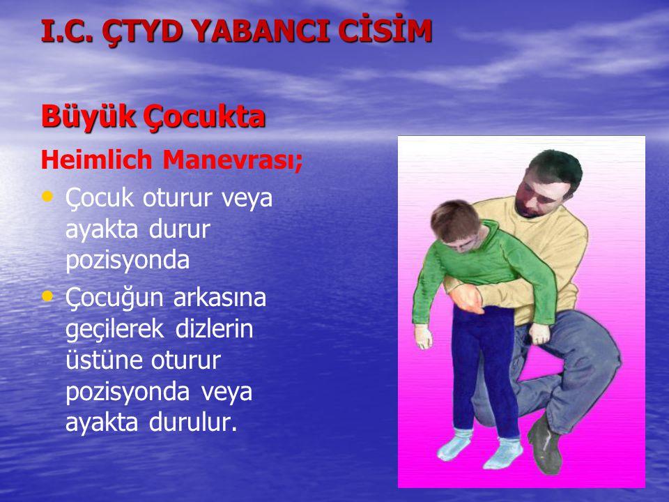 I.C. ÇTYD YABANCI CİSİM Büyük Çocukta Heimlich Manevrası; Çocuk oturur veya ayakta durur pozisyonda Çocuğun arkasına geçilerek dizlerin üstüne oturur