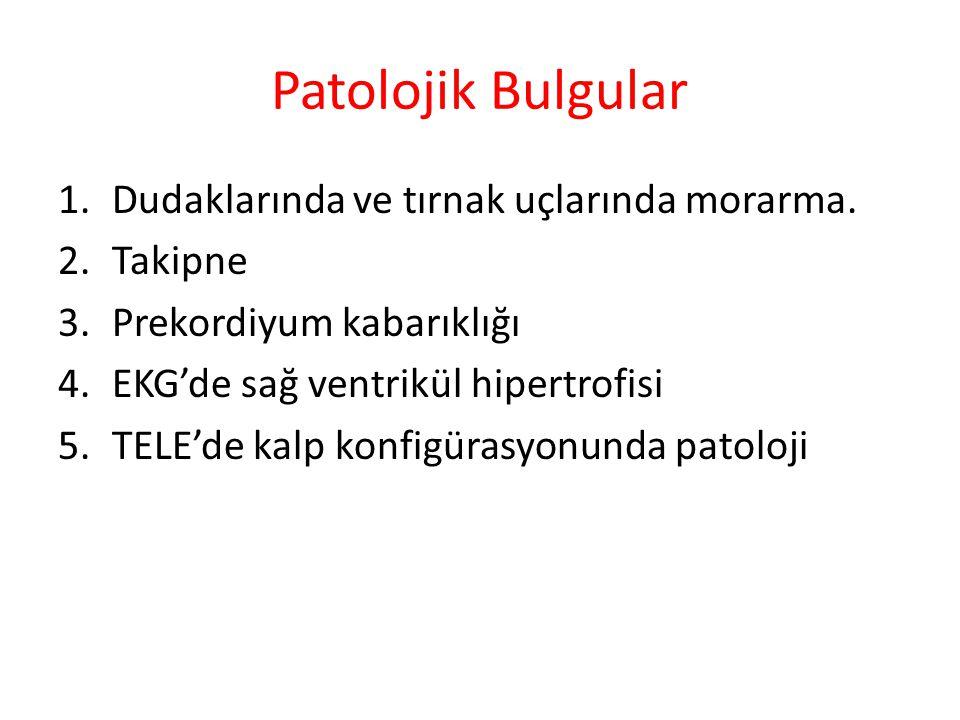 Patolojik Bulgular 1.Dudaklarında ve tırnak uçlarında morarma. 2.Takipne 3.Prekordiyum kabarıklığı 4.EKG'de sağ ventrikül hipertrofisi 5.TELE'de kalp