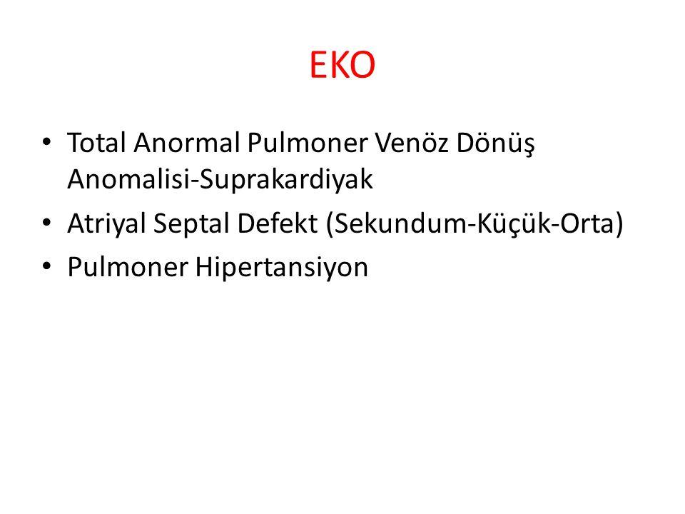EKO Total Anormal Pulmoner Venöz Dönüş Anomalisi-Suprakardiyak Atriyal Septal Defekt (Sekundum-Küçük-Orta) Pulmoner Hipertansiyon