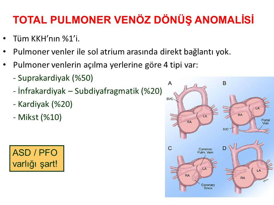 TOTAL PULMONER VENÖZ DÖNÜŞ ANOMALİSİ Tüm KKH'nın %1'i. Pulmoner venler ile sol atrium arasında direkt bağlantı yok. Pulmoner venlerin açılma yerlerine