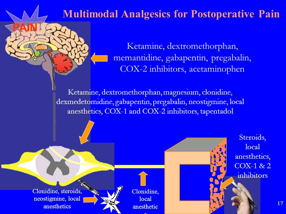 Ketamine, dextromethorphan, memantidine, gabapentin, pregabalin, COX-2 inhibitors, acetaminophen PAIN Ketamine, dextromethorphan, magnesium, clonidine