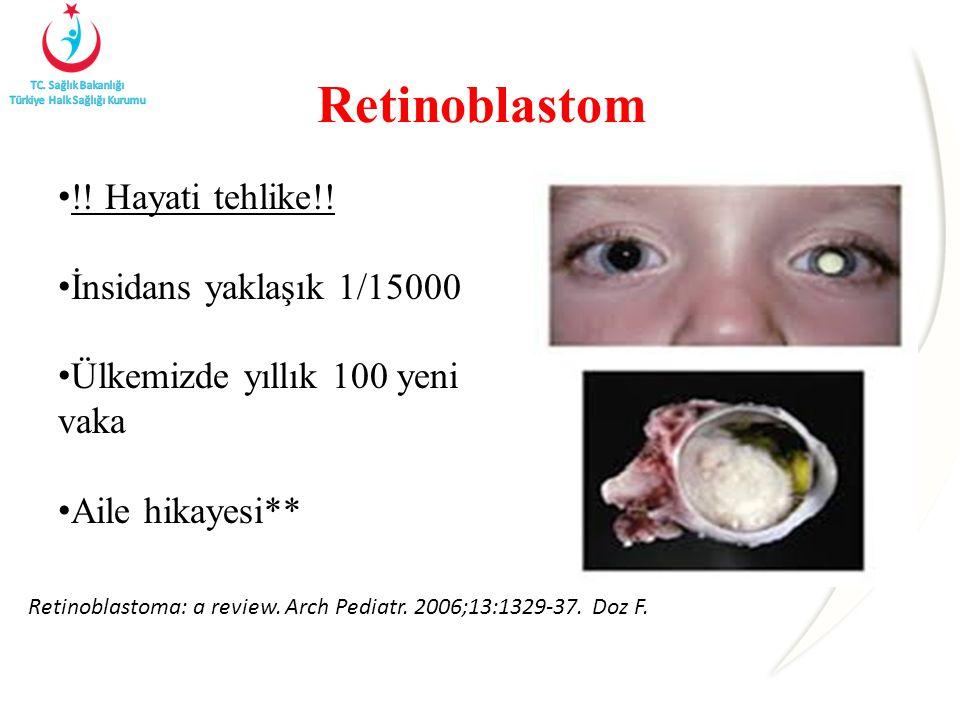 Retinoblastom !! Hayati tehlike!! İnsidans yaklaşık 1/15000 Ülkemizde yıllık 100 yeni vaka Aile hikayesi** Retinoblastoma: a review. Arch Pediatr. 200