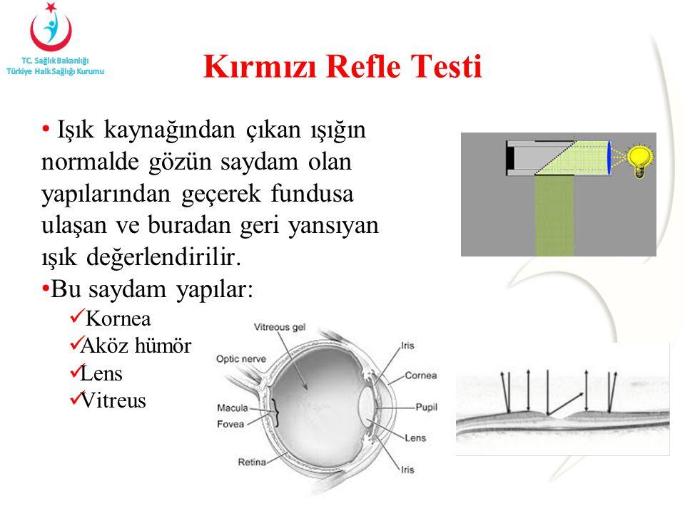 Kırmızı Refle Testi Işık kaynağından çıkan ışığın normalde gözün saydam olan yapılarından geçerek fundusa ulaşan ve buradan geri yansıyan ışık değerle