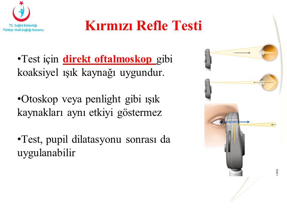 Kırmızı Refle Testi Test için direkt oftalmoskop gibi koaksiyel ışık kaynağı uygundur. Otoskop veya penlight gibi ışık kaynakları aynı etkiyi gösterme