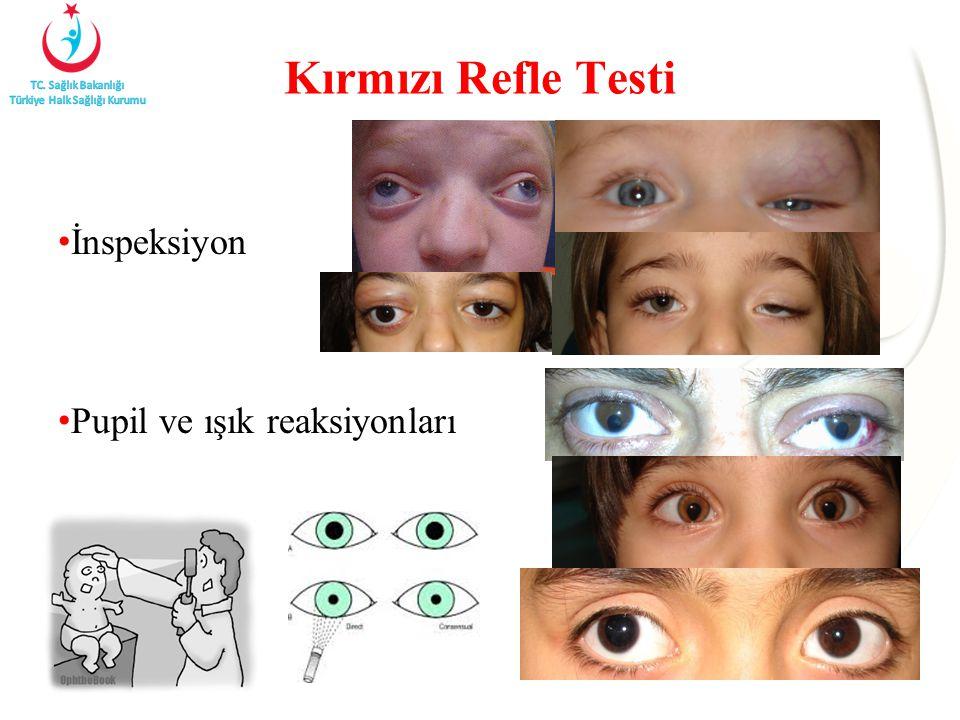 Kırmızı Refle Testi İnspeksiyon Pupil ve ışık reaksiyonları
