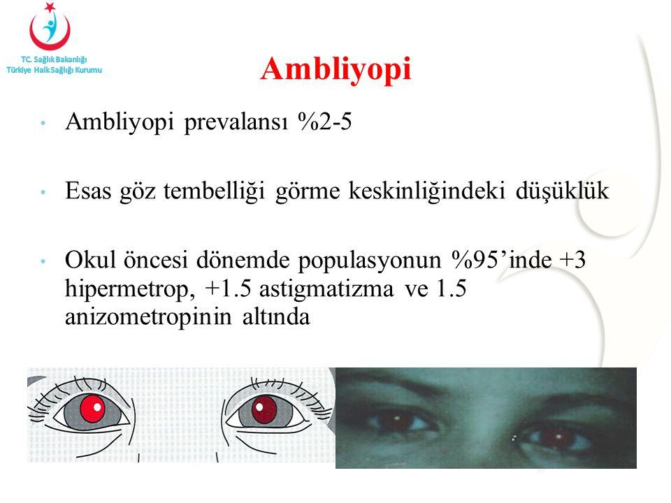 Ambliyopi prevalansı %2-5 Esas göz tembelliği görme keskinliğindeki düşüklük Okul öncesi dönemde populasyonun %95'inde +3 hipermetrop, +1.5 astigmatizma ve 1.5 anizometropinin altında Ambliyopi