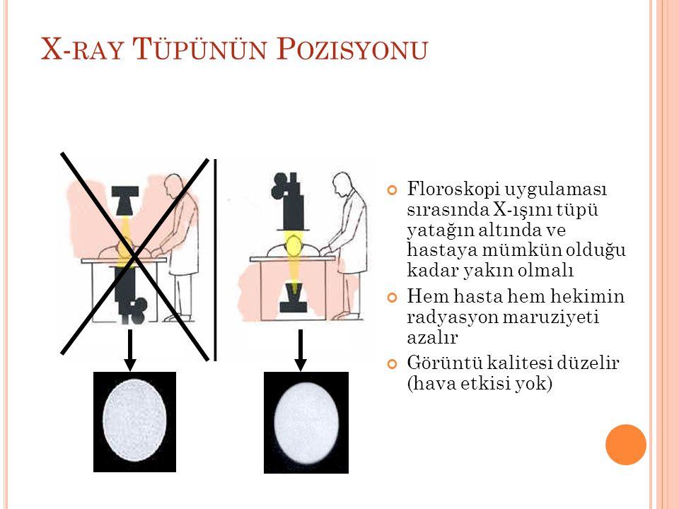 X- RAY T ÜPÜNÜN P OZISYONU Floroskopi uygulaması sırasında X-ışını tüpü yatağın altında ve hastaya mümkün olduğu kadar yakın olmalı Hem hasta hem hekimin radyasyon maruziyeti azalır Görüntü kalitesi düzelir (hava etkisi yok)