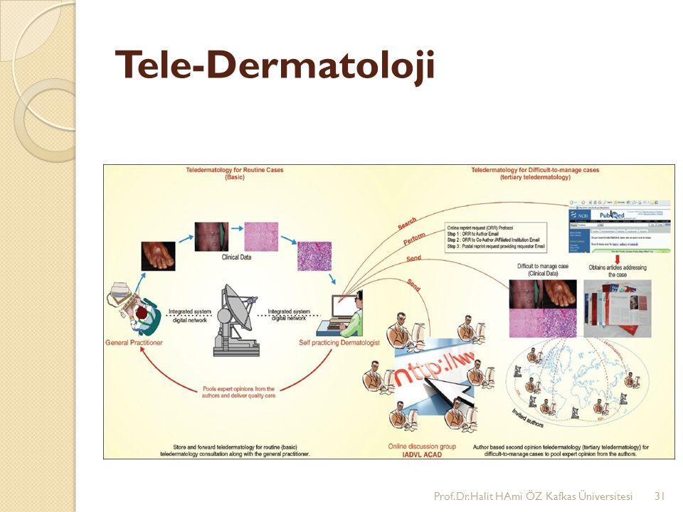 Tele-Dermatoloji Prof.Dr.Halit HAmi ÖZ Kafkas Üniversitesi31