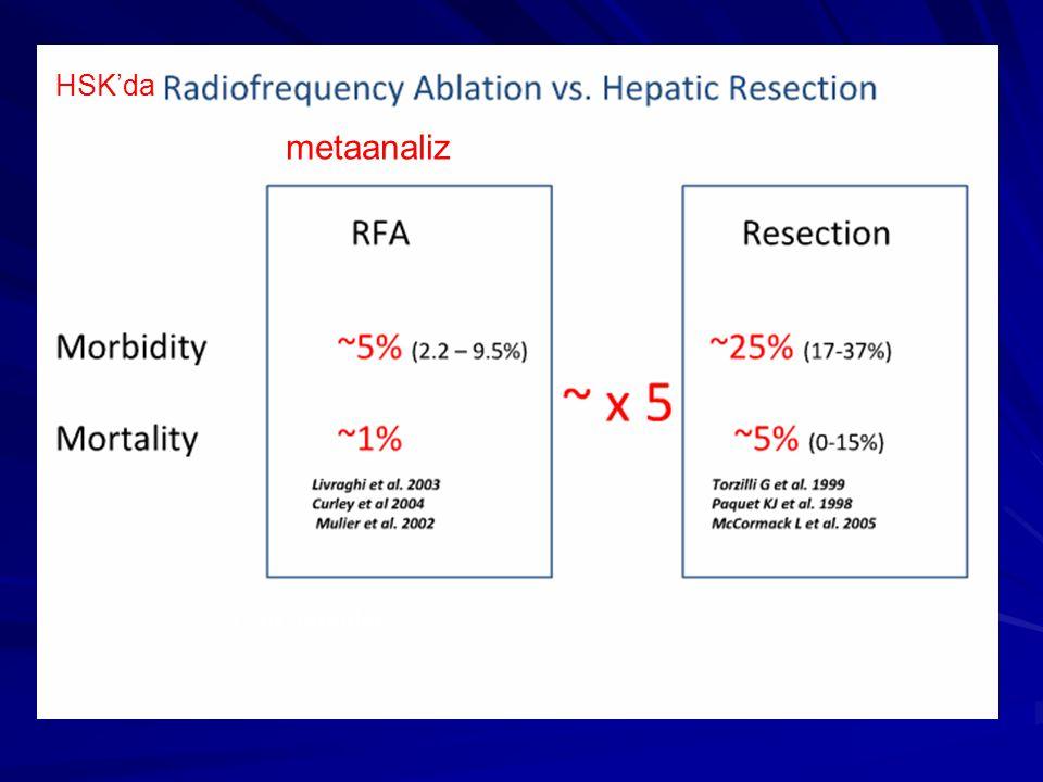 RF Ablation vs resection for liver tumors: an evidence-based approach to retrospective studies Gravante G et al.