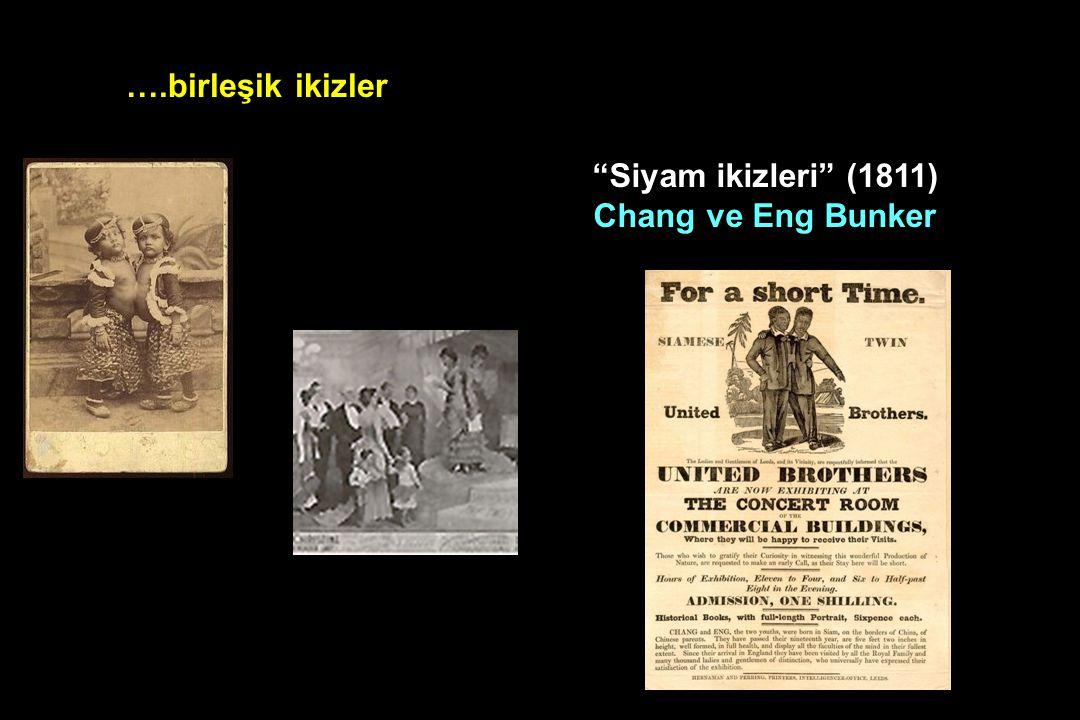 """….birleşik ikizler """"Siyam ikizleri"""" (1811) Chang ve Eng Bunker"""