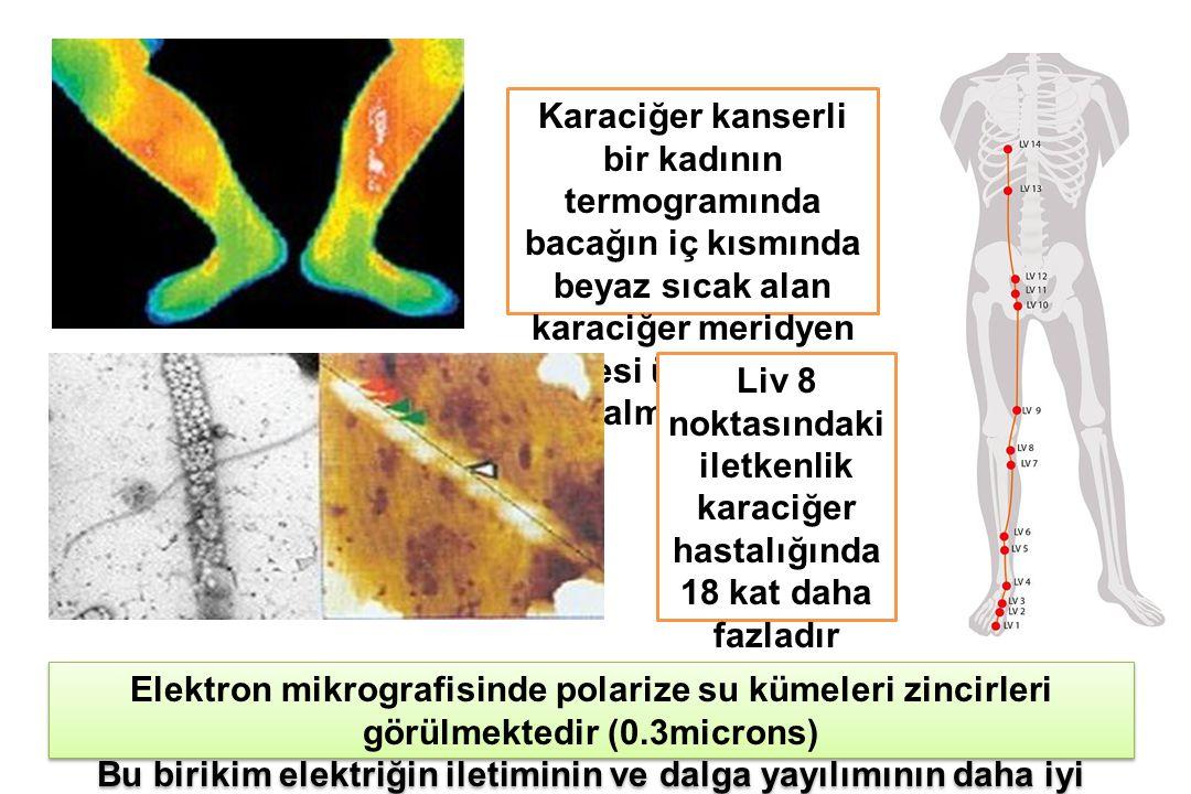 Karaciğer kanserli bir kadının termogramında bacağın iç kısmında beyaz sıcak alan karaciğer meridyen trasesi üzerinde yer almaktadır Elektron mikrografisinde polarize su kümeleri zincirleri görülmektedir (0.3microns) Bu birikim elektriğin iletiminin ve dalga yayılımının daha iyi olması anlamına gelmektedir Elektron mikrografisinde polarize su kümeleri zincirleri görülmektedir (0.3microns) Bu birikim elektriğin iletiminin ve dalga yayılımının daha iyi olması anlamına gelmektedir Liv 8 noktasındaki iletkenlik karaciğer hastalığında 18 kat daha fazladır