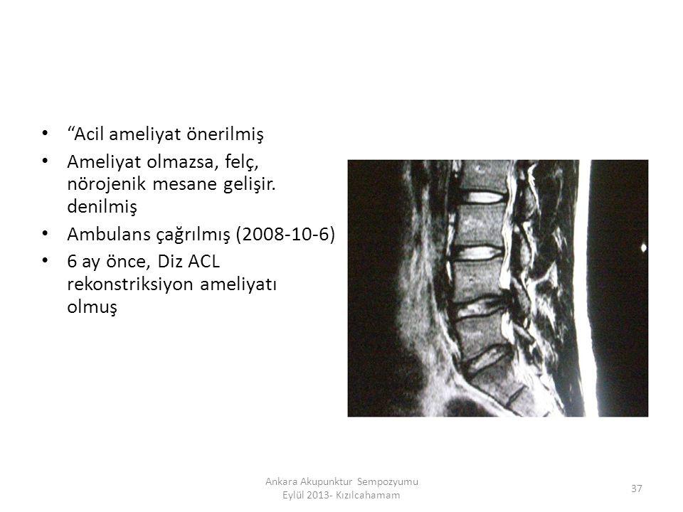 """""""Acil ameliyat önerilmiş Ameliyat olmazsa, felç, nörojenik mesane gelişir. denilmiş Ambulans çağrılmış (2008-10-6) 6 ay önce, Diz ACL rekonstriksiyon"""