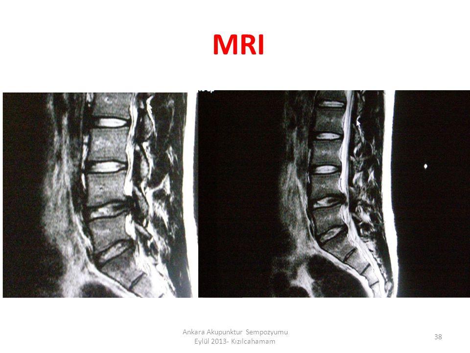 MRI 38 Ankara Akupunktur Sempozyumu Eylül 2013- Kızılcahamam