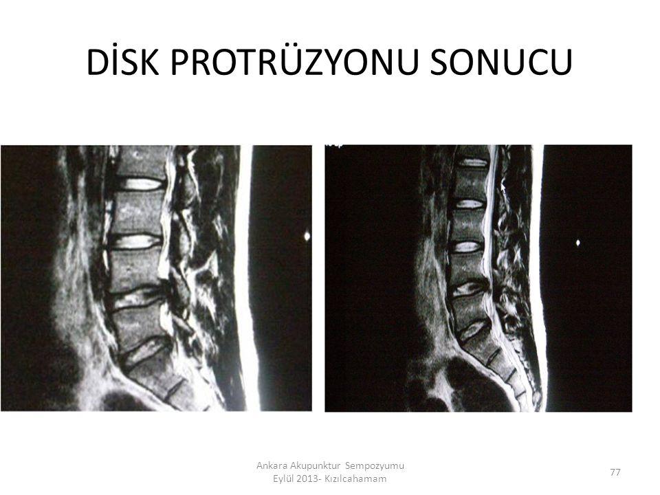 DİSK PROTRÜZYONU SONUCU 77 Ankara Akupunktur Sempozyumu Eylül 2013- Kızılcahamam