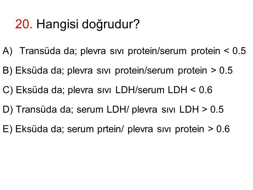 20. Hangisi doğrudur? A)Transüda da; plevra sıvı protein/serum protein < 0.5 B) Eksüda da; plevra sıvı protein/serum protein > 0.5 C) Eksüda da; plevr