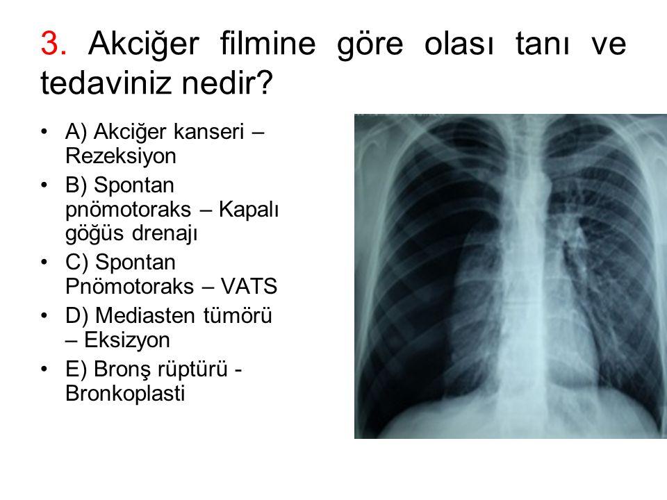 3. Akciğer filmine göre olası tanı ve tedaviniz nedir? A) Akciğer kanseri – Rezeksiyon B) Spontan pnömotoraks – Kapalı göğüs drenajı C) Spontan Pnömot