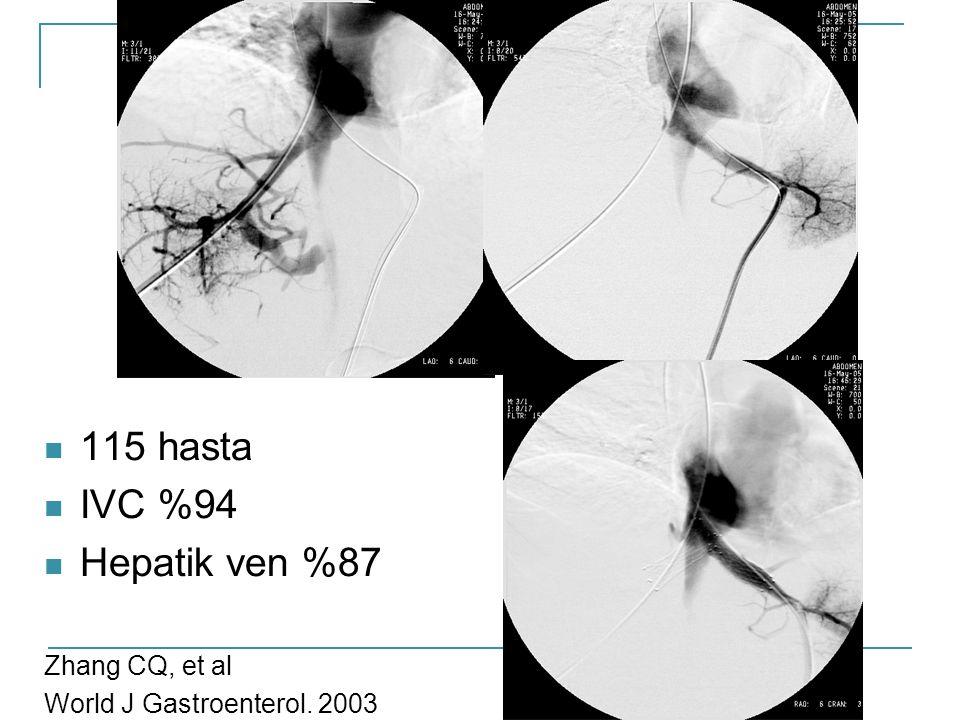 115 hasta IVC %94 Hepatik ven %87 Zhang CQ, et al World J Gastroenterol. 2003