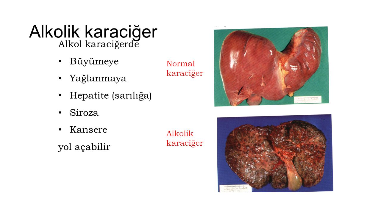 Alkolik karaciğer Normal karaciğer Alkolik karaciğer Alkol karaciğerde Büyümeye Yağlanmaya Hepatite (sarılığa) Siroza Kansere yol açabilir