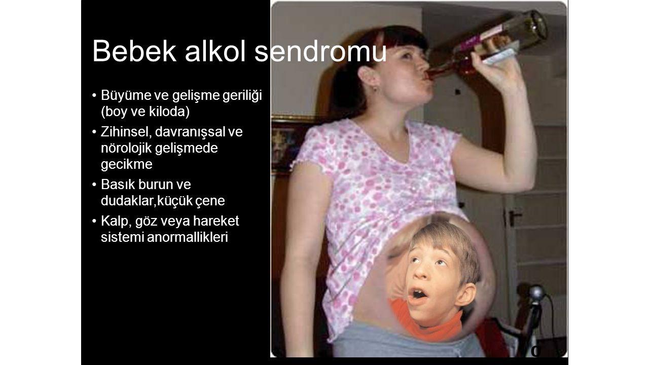 Bebek alkol sendromu Büyüme ve gelişme geriliği (boy ve kiloda) Zihinsel, davranışsal ve nörolojik gelişmede gecikme Basık burun ve dudaklar,küçük çene Kalp, göz veya hareket sistemi anormallikleri 0