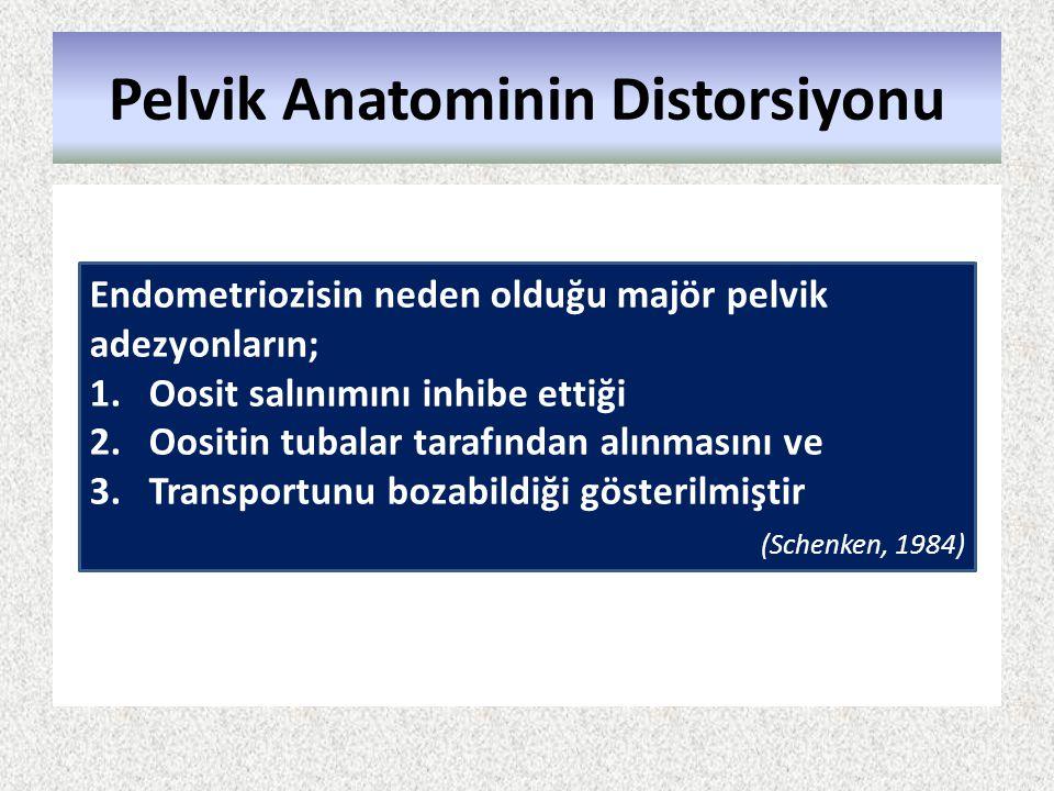 Pelvik Anatominin Distorsiyonu Endometriozisin neden olduğu majör pelvik adezyonların; 1.Oosit salınımını inhibe ettiği 2.Oositin tubalar tarafından a