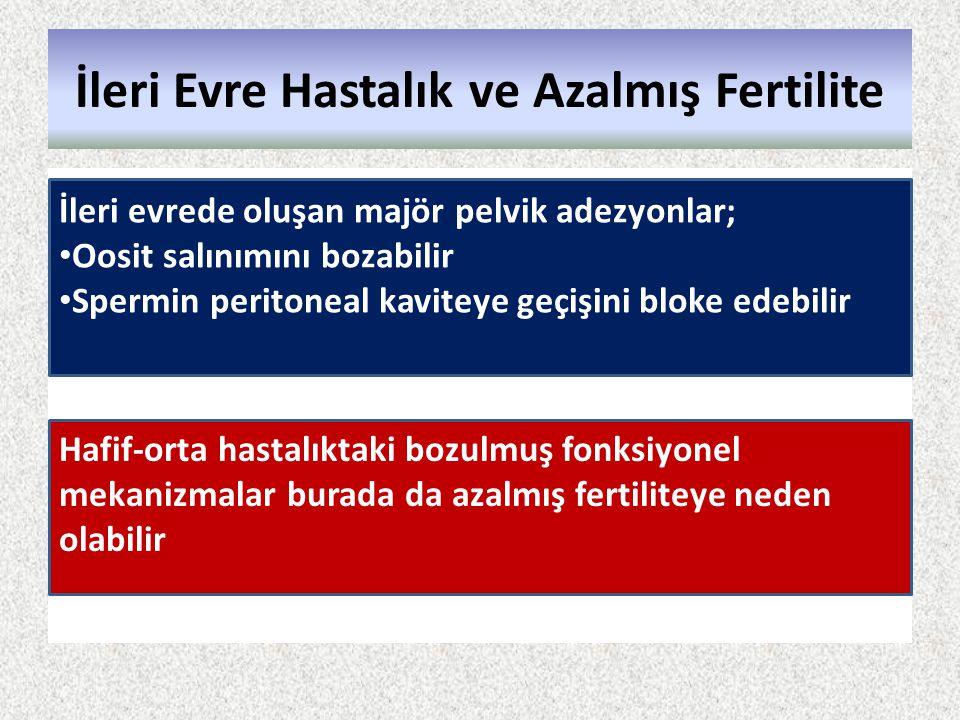 İleri Evre Hastalık ve Azalmış Fertilite İleri evrede oluşan majör pelvik adezyonlar; Oosit salınımını bozabilir Spermin peritoneal kaviteye geçişini
