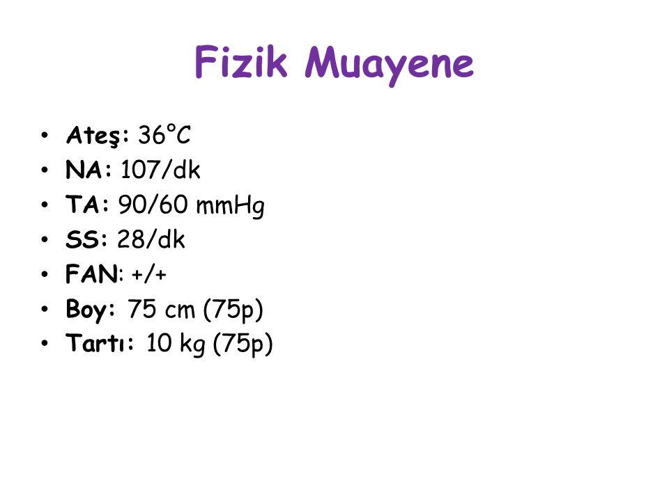 Fizik Muayene Ateş: 36°C NA: 107/dk TA: 90/60 mmHg SS: 28/dk FAN: +/+ Boy: 75 cm (75p) Tartı: 10 kg (75p)
