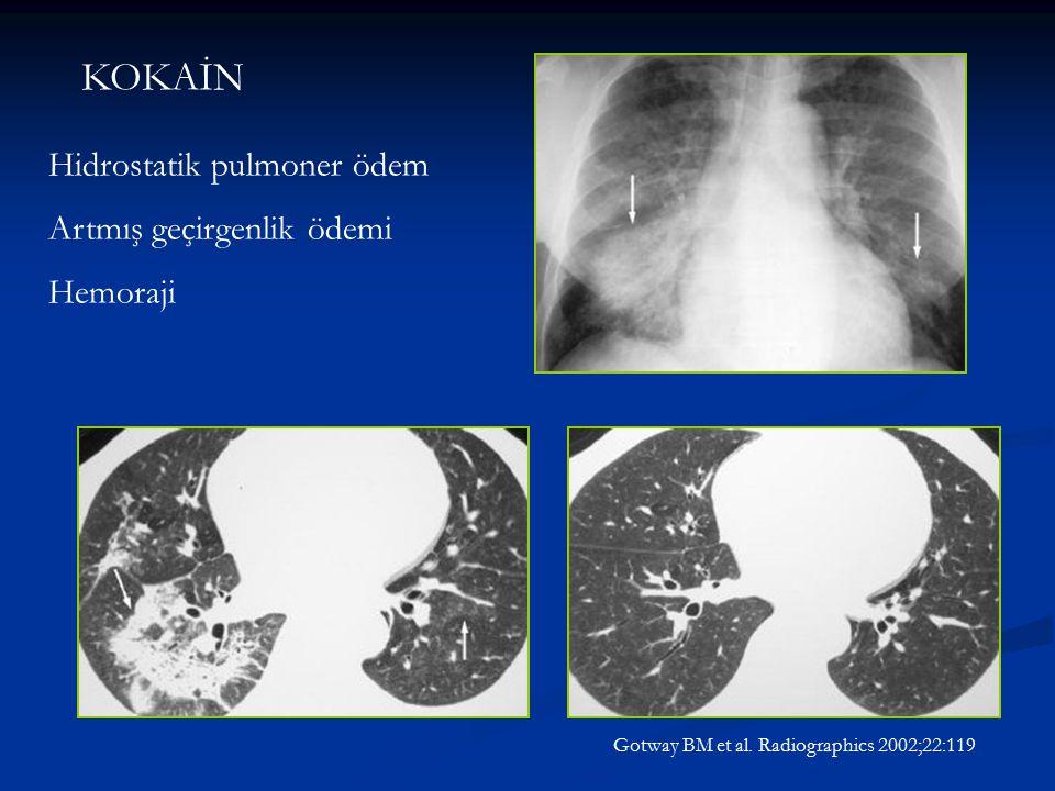 KOKAİN Hidrostatik pulmoner ödem Artmış geçirgenlik ödemi Hemoraji Gotway BM et al. Radiographics 2002;22:119
