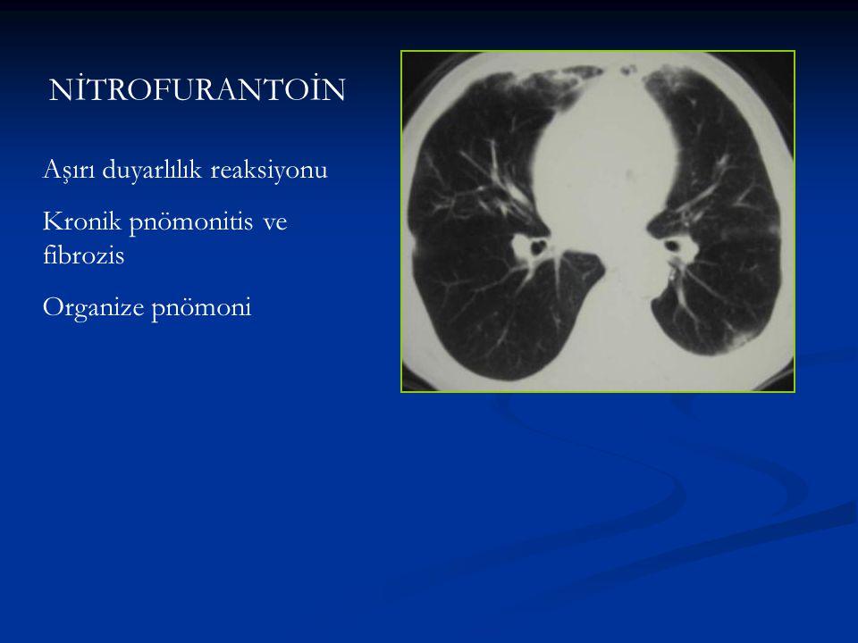 NİTROFURANTOİN Aşırı duyarlılık reaksiyonu Kronik pnömonitis ve fibrozis Organize pnömoni