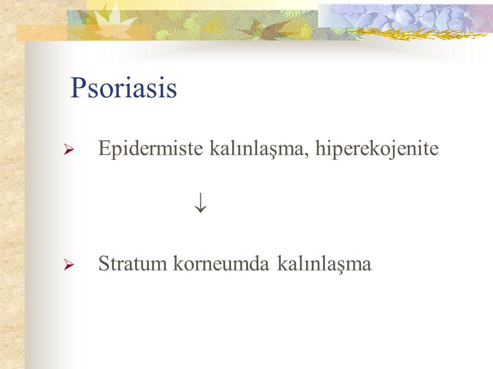 Psoriasis  Epidermiste kalınlaşma, hiperekojenite   Stratum korneumda kalınlaşma