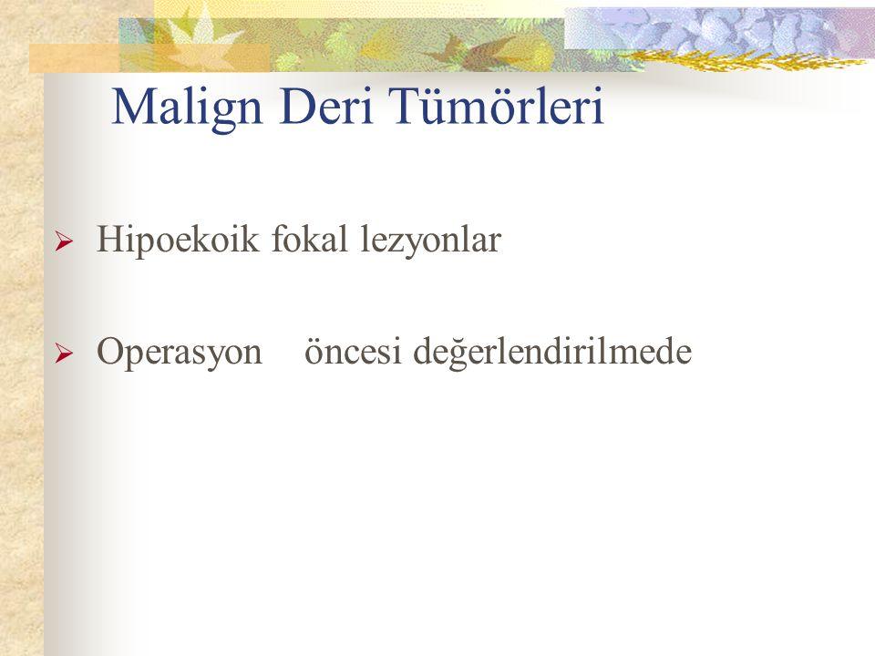 Malign Deri Tümörleri  Hipoekoik fokal lezyonlar  Operasyon öncesi değerlendirilmede