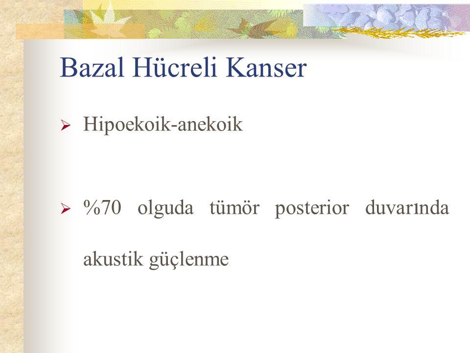Bazal Hücreli Kanser  Hipoekoik-anekoik  %70 olguda tümör posterior duvar ı nda akustik güçlenme