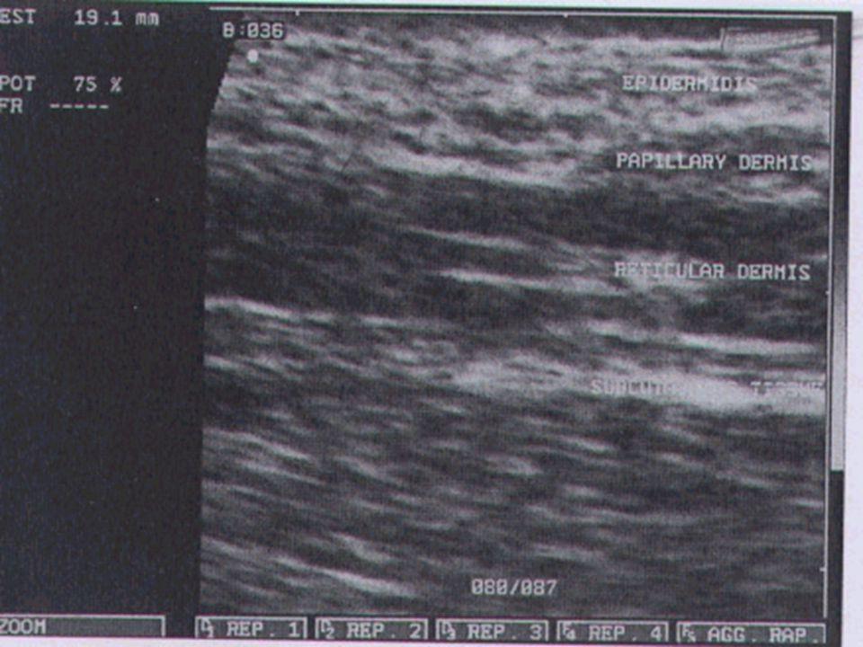  Melanomların postoperatif olarak takip edilmesinde  Breslow kalınlığına göre lenfatik drenaj ve rejyonel lenfatik alanları incelemesinde