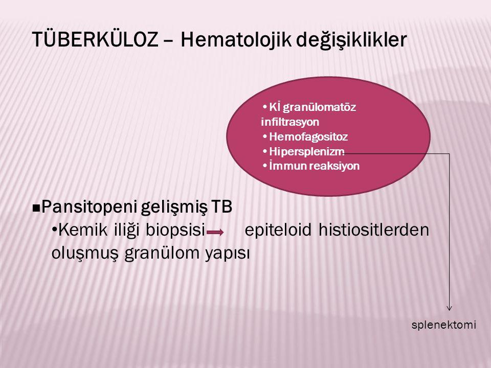 TÜBERKÜLOZ – Hematolojik değişiklikler Pansitopeni gelişmiş TB Kemik iliği biopsisi epiteloid histiositlerden oluşmuş granülom yapısı Kİ granülomatöz