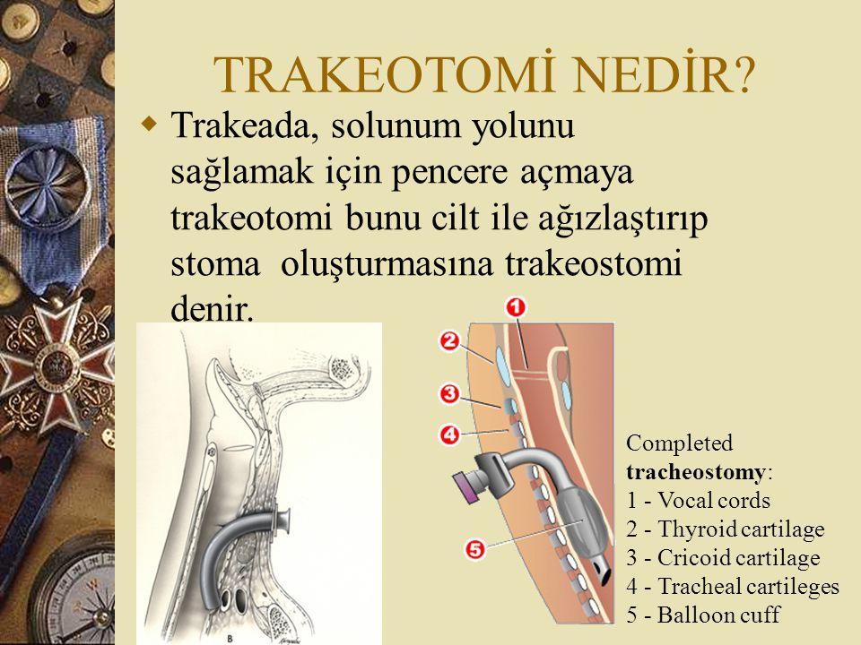 TRAKEOTOMİ NEDİR?  Trakeada, solunum yolunu sağlamak için pencere açmaya trakeotomi bunu cilt ile ağızlaştırıp stoma oluşturmasına trakeostomi denir.