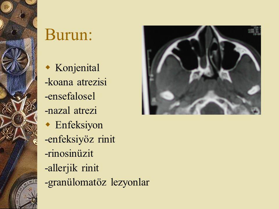 Burun:  Konjenital -koana atrezisi -ensefalosel -nazal atrezi  Enfeksiyon -enfeksiyöz rinit -rinosinüzit -allerjik rinit -granülomatöz lezyonlar