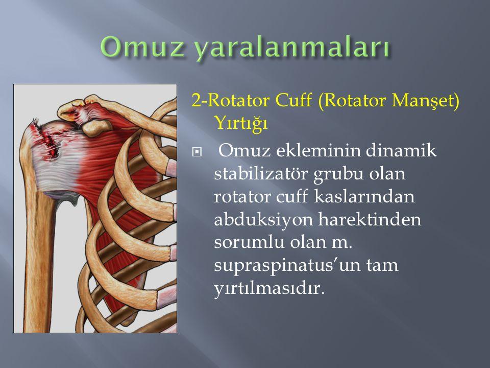 2-Rotator Cuff (Rotator Manşet) Yırtığı  Omuz ekleminin dinamik stabilizatör grubu olan rotator cuff kaslarından abduksiyon harektinden sorumlu olan