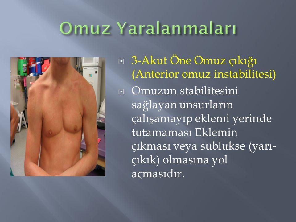  3-Akut Öne Omuz çıkığı (Anterior omuz instabilitesi)  Omuzun stabilitesini sağlayan unsurların çalışamayıp eklemi yerinde tutamaması Eklemin çıkmas
